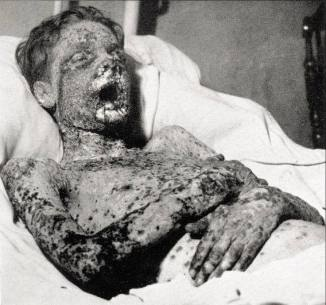 Smallpox boy
